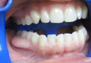 Kur protezuotis dantis?